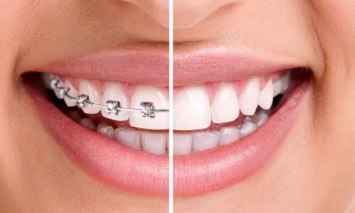 Ортодонтия за възрастни